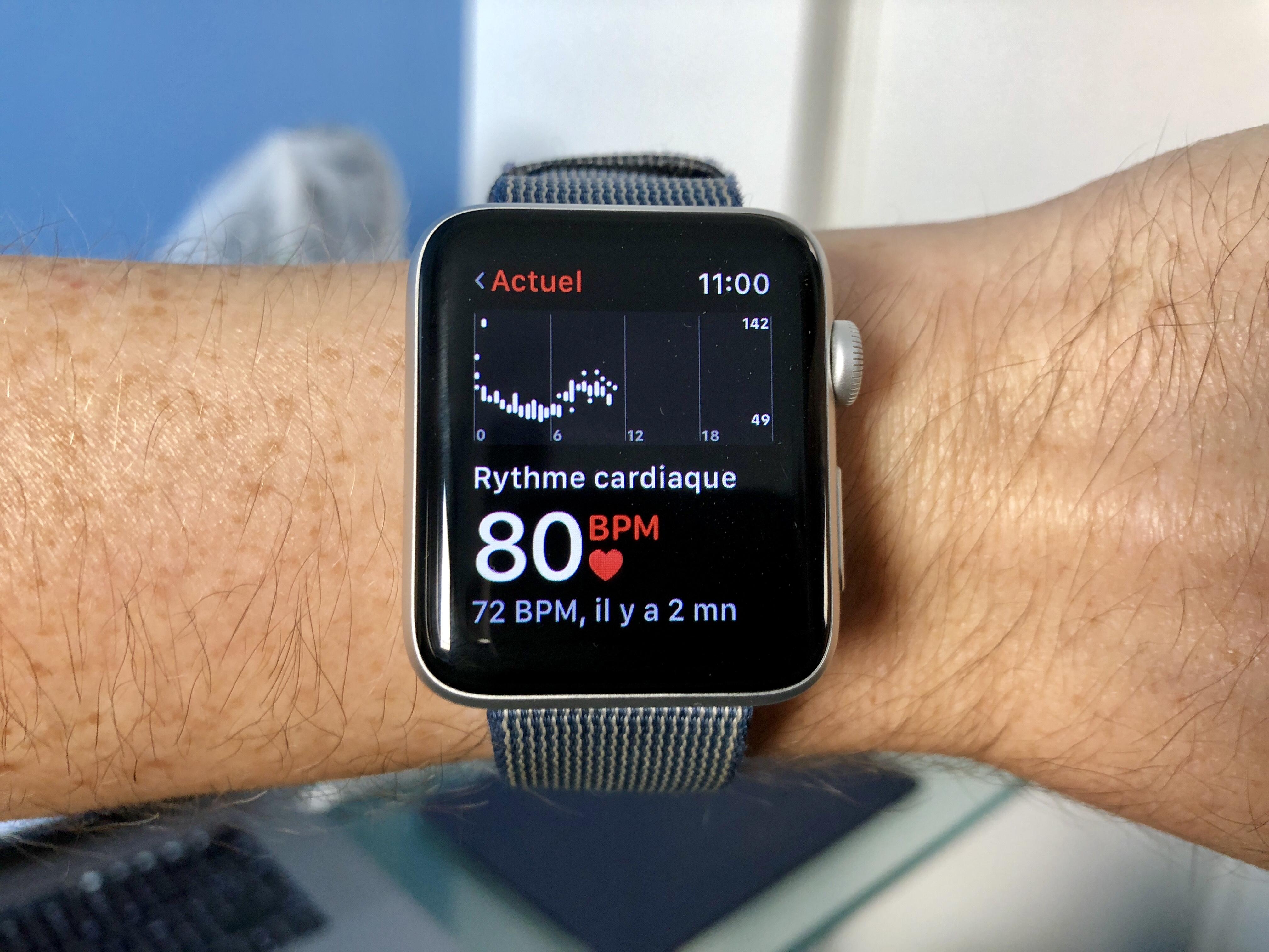 L'Apple Watch émet des alertes et anticipe la (grave) crise de tachycardie de son porteur 1