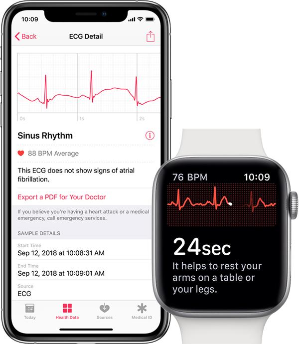 Apple Watch Séries 4 : la mesure de l'Electrocardiogramme désormais disponible dans de nombreux pays dont France, Belgique, Suisse, etc. 1