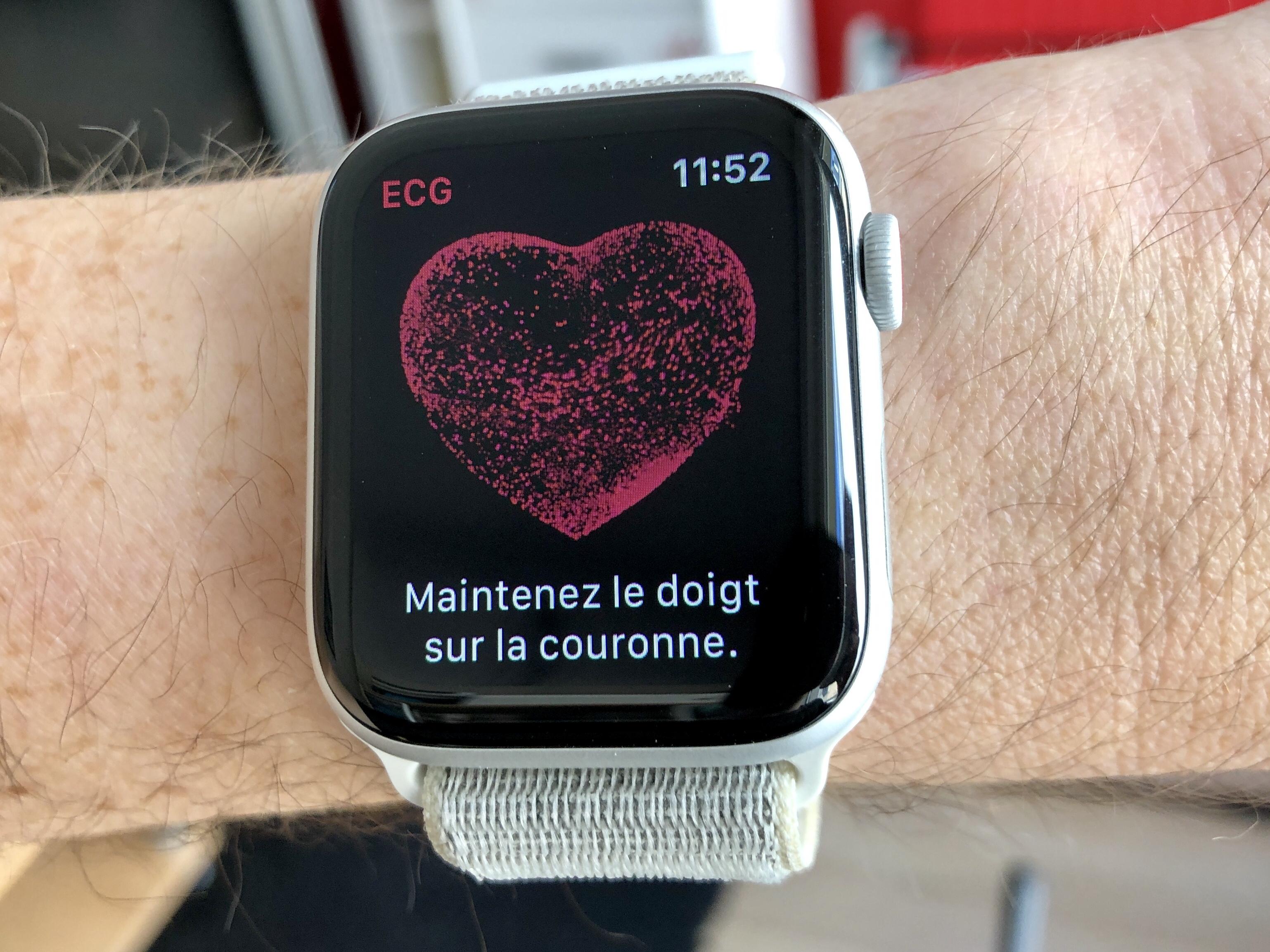 Comment mesurer un électrocardiogramme avec l'Apple Watch (vidéo, paramétrage, interprétation) 1