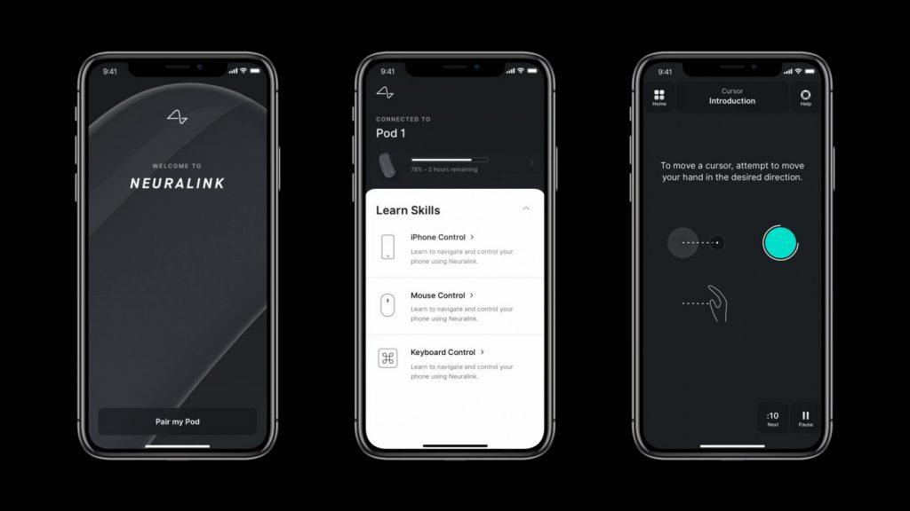 Avec Neuralink, Elon Musk veut nous faire piloter l'iPhone avec le cerveau 4