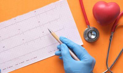 Coeur et ECG