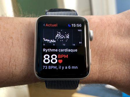 L'Apple Watch émet des alertes et anticipe la (grave) crise de tachycardie de son porteur 2