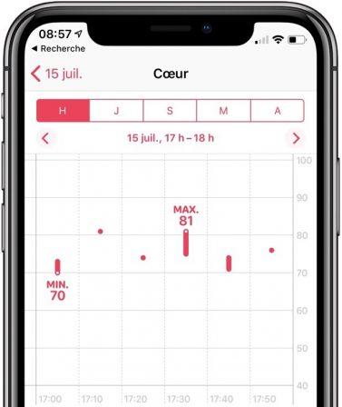 L'Apple Watch Séries 4 et l'électrocardiogramme: quoi? Quand en France? Pour quel usage? 4
