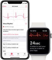 Peut-on activer la mesure d électro cardiogramme sur l Apple Watch Séries 4  en dehors des US   aa93c0b6e8c0