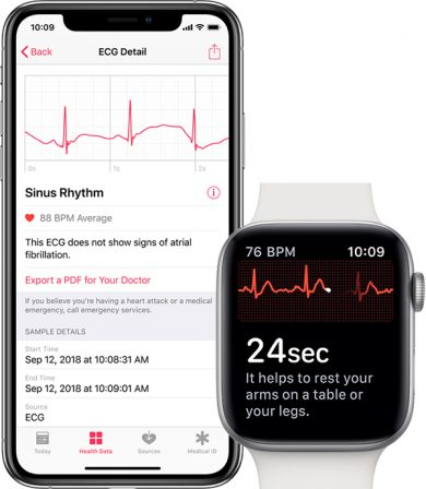 Comment mesurer un électrocardiogramme avec l'Apple Watch (vidéo, paramétrage, interprétation) 13