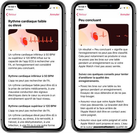 Comment mesurer un électrocardiogramme avec l'Apple Watch (vidéo, paramétrage, interprétation) 11