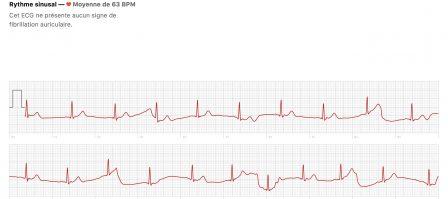 Comment mesurer un électrocardiogramme avec l'Apple Watch (vidéo, paramétrage, interprétation) 12
