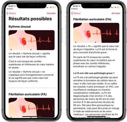 Comment mesurer un électrocardiogramme avec l'Apple Watch (vidéo, paramétrage, interprétation) 10