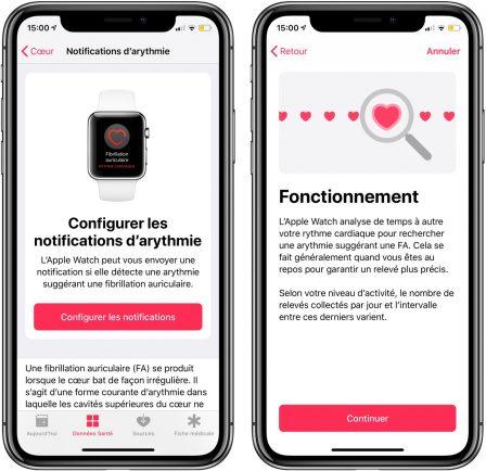 Comment mesurer un électrocardiogramme avec l'Apple Watch (vidéo, paramétrage, interprétation) 8